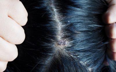 Soigner des soucis de cheveux, les méthodes